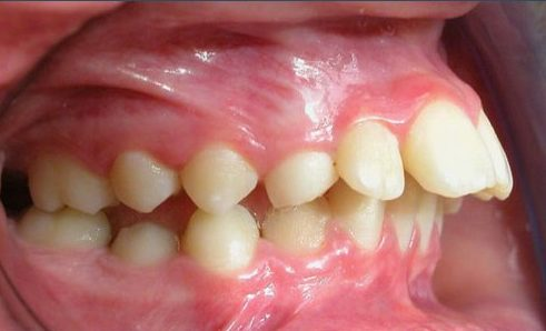 cách nhận biết hô răng hay hô hàm 4