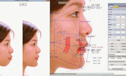 cách nhận biết hô răng hay hô hàm 5