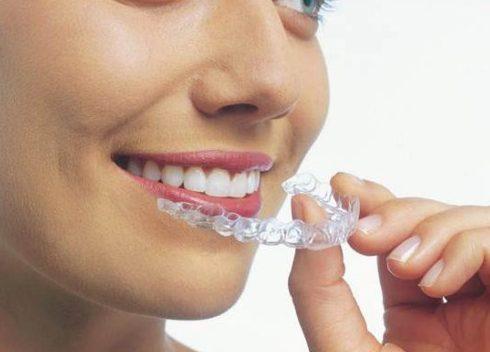Cách tẩy trắng răng tại nhà bằng máng tẩy 2