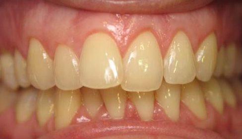 cách tẩy trắng răng theo phương pháp dân gian 5