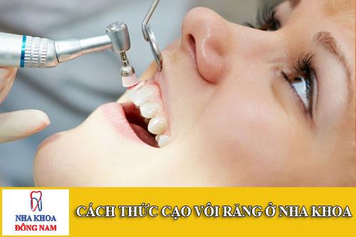 cách thức cạo vôi răng ở nha khoa