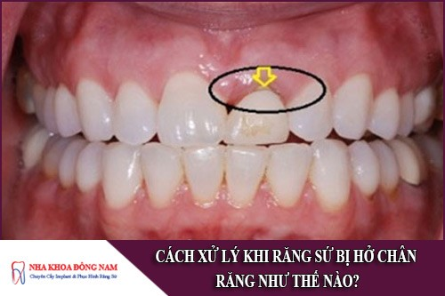 cách xử lý khi răng sứ bị hở chân răng như thế nào