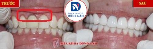 phục hình răng sứ mới cho răng sứ bị hở chân