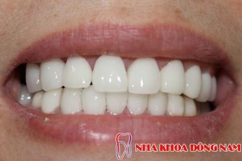 bọc 2 hàm răng sứ toàn sứ