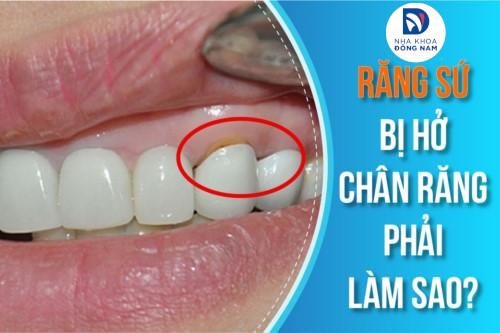 cách xử lý khi răng sứ bị hở chân răng như thế nào 6