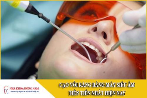 cạo vôi răng bằng máy siêu âm tiên tiến nhất hiện nay