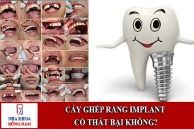 cấy ghép răng implant có thất bại không