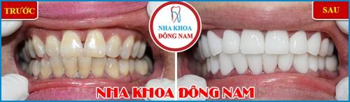 Chế tác răng sứ Cad Cam tại Nha Khoa Đông Nam 10