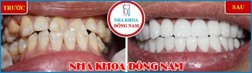 Chế tác răng sứ Cad Cam tại Nha Khoa Đông Nam 14