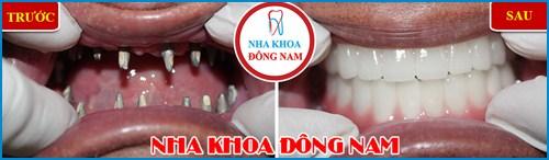 Chế tác răng sứ Cad/Cam tại Nha Khoa Đông Nam 17