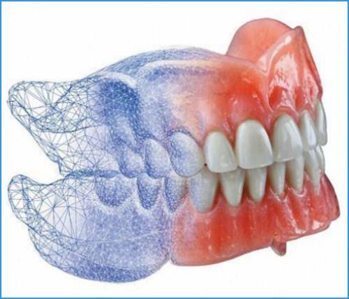 Chế tác răng sứ Cad/Cam tại Nha Khoa Đông Nam 2
