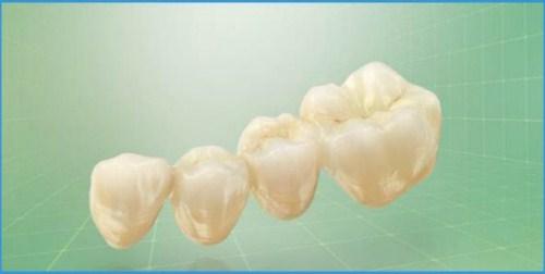 Chế tác răng sứ Cad/Cam tại Nha Khoa Đông Nam 4