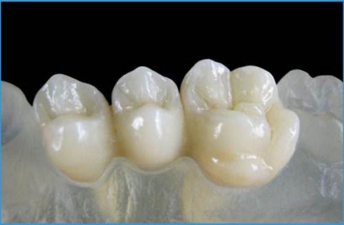 Chế tác răng sứ Cad/Cam tại Nha Khoa Đông Nam 5