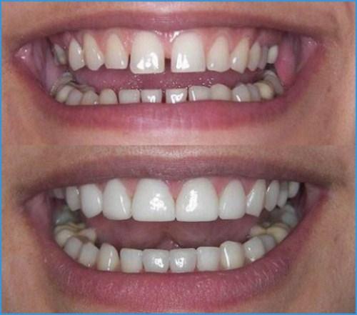 Chế tác răng sứ Cad/Cam tại Nha Khoa Đông Nam
