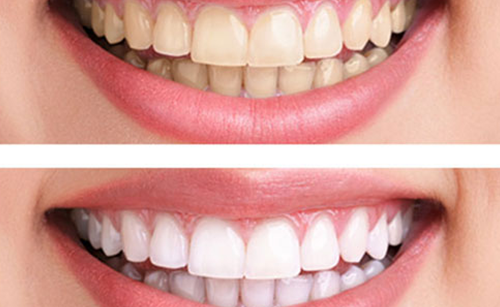 Tẩy trắng răng tại nha khoa đông nam 3