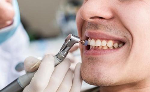 Tẩy trắng răng tại nha khoa đông nam 2