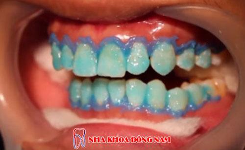 Tẩy trắng răng tại nha khoa đông nam 1