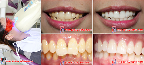 Tẩy trắng răng tại nha khoa đông nam 4
