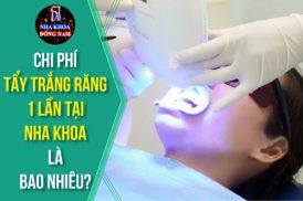 chi phí tẩy trắng răng tại nha khoa