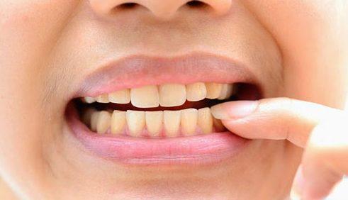 có nên tự lấy vôi răng bằng baking soda không 1