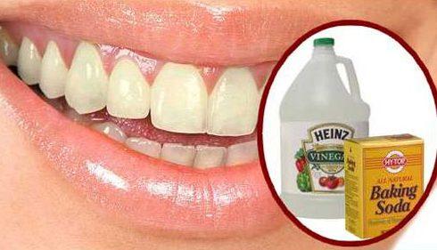 có nên tự lấy vôi răng bằng baking soda không 4