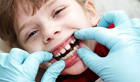 có nên sử dụng niềng răng tháo lắp cho trẻ em hay không 1
