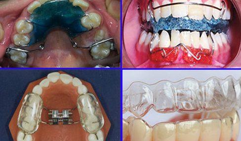 có nên sử dụng niềng răng tháo lắp cho trẻ em hay không 3