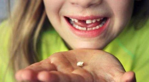 có nên tự nhổ răng sữa tại nhà cho bé 1