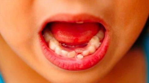 có nên tự nhổ răng sữa tại nhà cho bé 2