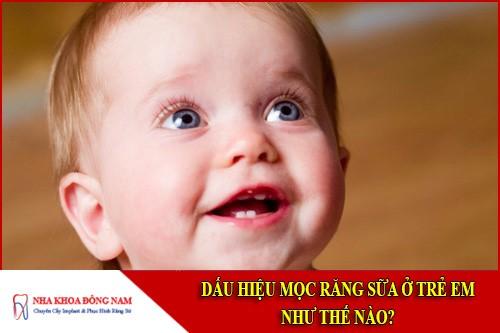 dấu hiệu mọc răng sữa ở trẻ em như thế nào