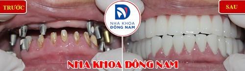 cấy ghép răng implant nguyên hàm