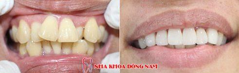 Điều trị răng mọc lộn xộn và chìa ra ngoài
