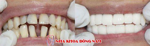 điều trị răng thưa trở nên khít lại