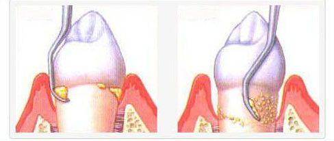 dụng cụ cạo vôi răng tiên tiến nhất hiện nay 1