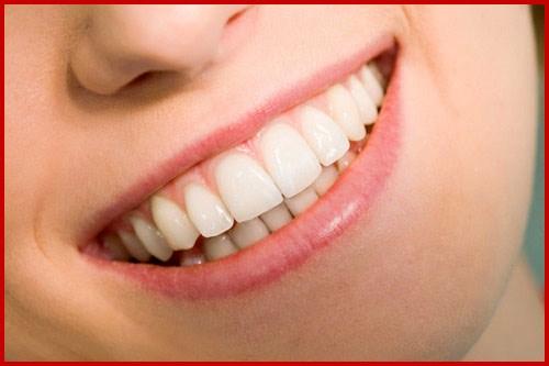 Một hàm răng đẹp dựa trên các yếu tố nào
