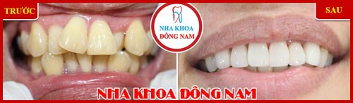 Một hàm răng đẹp dựa trên các yếu tố nào 10