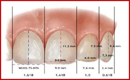 Một hàm răng đẹp dựa trên các yếu tố nào 7