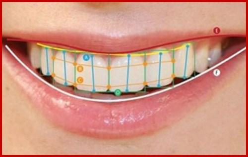 Một hàm răng đẹp dựa trên các yếu tố nào 4