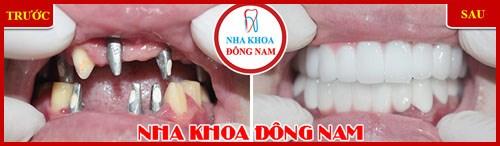 Một hàm răng đẹp dựa trên các yếu tố nào 6