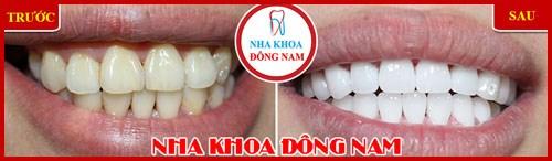 Một hàm răng đẹp dựa trên các yếu tố nào 8