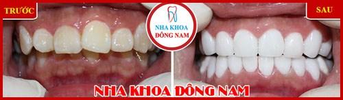 Một hàm răng đẹp dựa trên các yếu tố nào 9