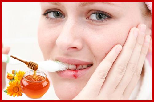 mật ong chữa chảy máu chân răng