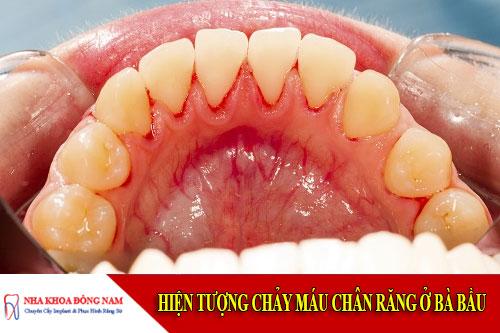hiện tượng chảy máu chân răng ở bà bầu