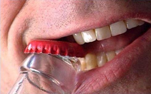 khi nào bọc răng sứ cần phải lấy tủy 7