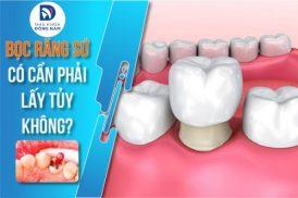 khi nào bọc răng sứ cần phải lấy tủy