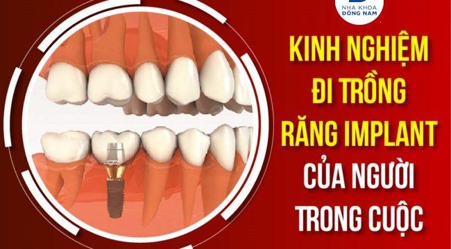 Kinh Nghiệm Đi Trồng Răng Implant Của Người Trong Cuộc