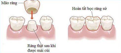 kinh nghiệm đi làm răng sứ thẩm mỹ 1