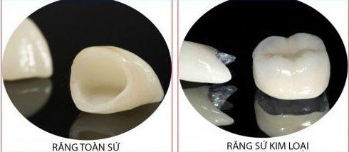 răng sứ toàn sứ và răng sứ kim loại