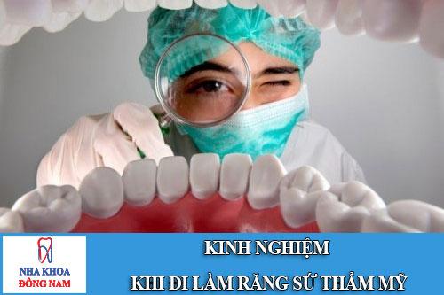 kinh nghiệm khi đi làm răng sứ thẩm mỹ