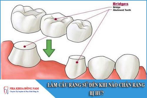 làm cầu răng sứ đến khi nào chân răng bị hư